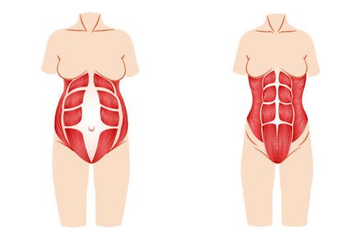 Rectus Diastase-genoptræning (udbulende mave)